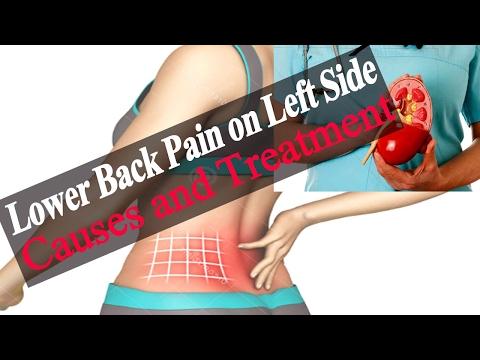 hqdefault - Severe Back Pain Down Left Side