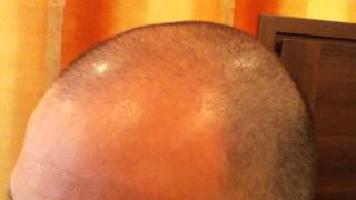 Day 81 Hair Regrowth Experiment with Rogaine Minoxidil 5%