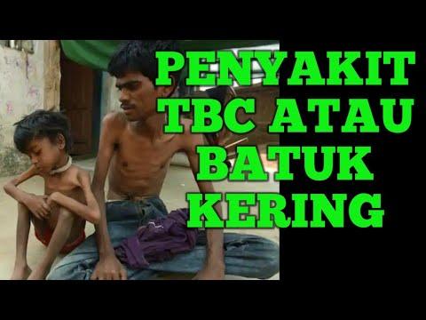 cara-mengatasi-mengobati-tbc|tuberkulosis|batuk-kering|secara-alami