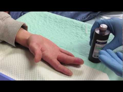 Felon Drainage - Abscess Of The Pulp Of A Finger
