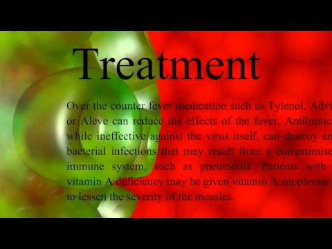 Measles virus presentation