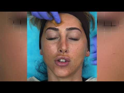 The Perfect Peel At Elite Plastic & Cosmetic Surgery Group In Dubai