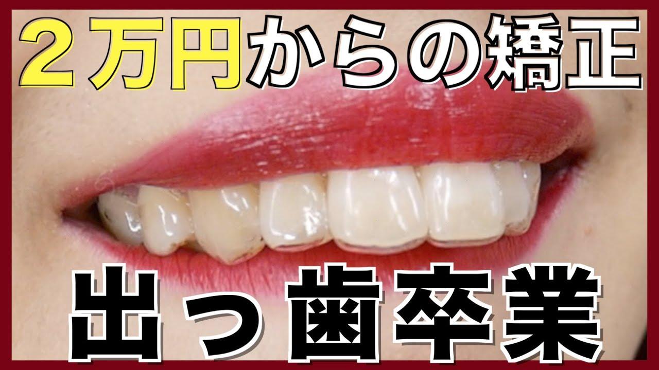 歯並び 矯正 自力 マウスピース