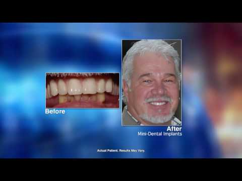 Replacing Missing Teeth with Mini-Dental Implants with St. Catharine dentist Dr. Pekar