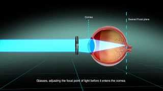 LaserFit Scleral Contact Lenses for complex vision problems