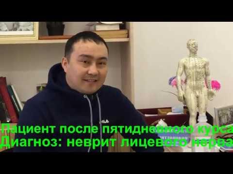 11.Неврит лицевого нерва.Лечение методом RANC в Казахстане. Отзыв пациента после лечения.