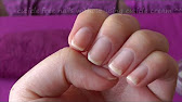 Use and Benefits of Gehwol Med Nail Softener - YouTube
