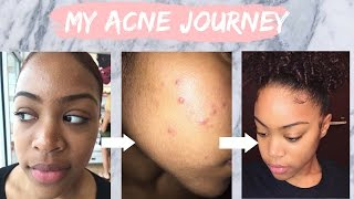 My Acne Journey | How I Cleared My Skin Using Tretinoin