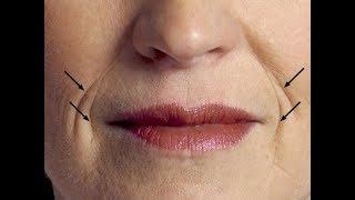 ★ Эффективные средства против морщин лице. Убирают даже глубокие морщины, омолаживают кожу