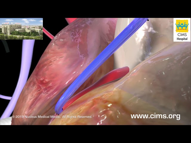 Coronary Artery Bypass Graft CABG (Hindi) - CIMS Hospital