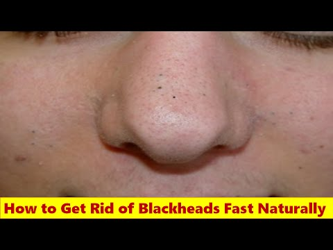 How To Get Rid Of Blackheads Naturally Overnight