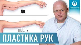 постер к видео Что такое брахиопластика? | Как делается пластика рук или плеча