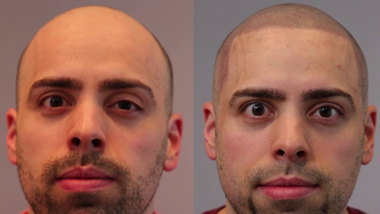 Before + After Scalp Micropigmentation   Matt Visits Hairline Ink Chicago -  YouTube