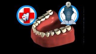 посуточно без как снять зубную боль дома без таблеток это более чем