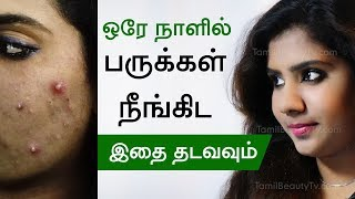 How to remove pimple? -  Home remedies for pimples - Tamil Beauty Tips
