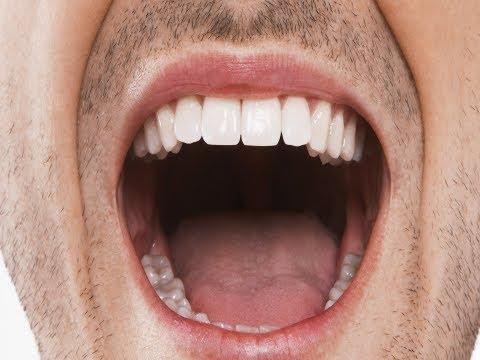 Chronic Halitosis Or Just Bad Breath? (Beauty & Grooming Guru)