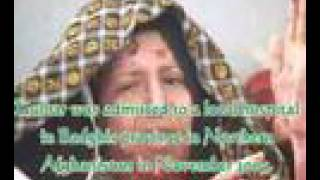 Gulbar is Burnt by Her Husband . www.RAWA.org tajik pakhtu