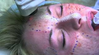 Repeat youtube video Deep FX and Active FX Laser for Acne Scars by Dr. Joe Niamtu, III
