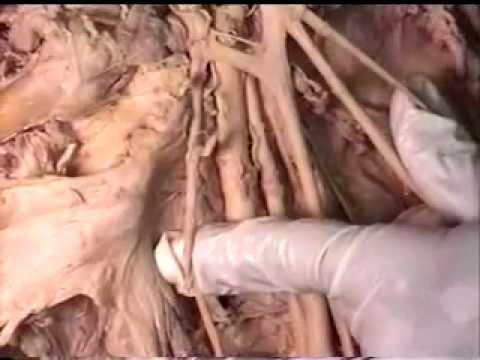 Gross Anatomy: Brachial Plexus - YouTube
