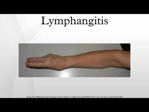 lymphangitis - youtube, Skeleton