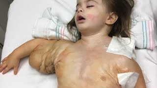 "Toddler's Rare ""Hulk"" Disease"