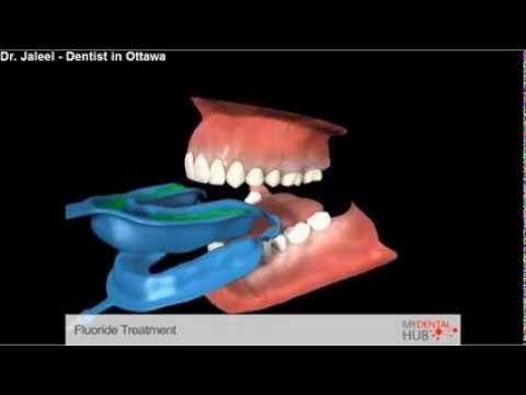 Preventive Fluoride Treatment Dentist Ottawa Youtube