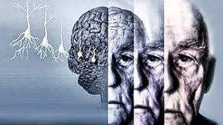 видео Заболевание Альцгеймера - признаки болезни и ее лечение
