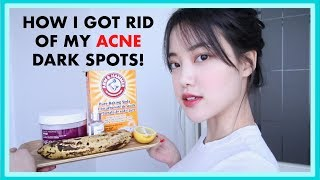 How to Fade Acne Dark Scars / Favorite Natural Home Remedies and Products thumbnail