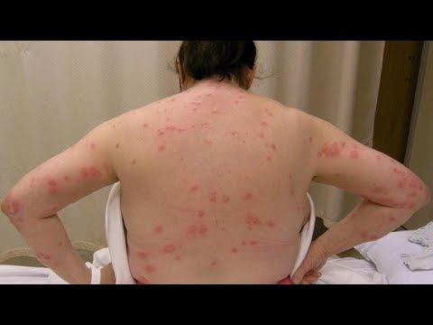 Side Effects of Mosquito Bites - Mosquito Bites Effects & Reaction EXPLAINED!