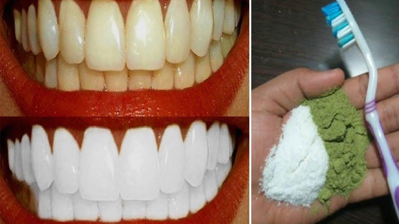 Magical Teeth Whitening Home Remedy Turn Yellow Teeth To Pearl
