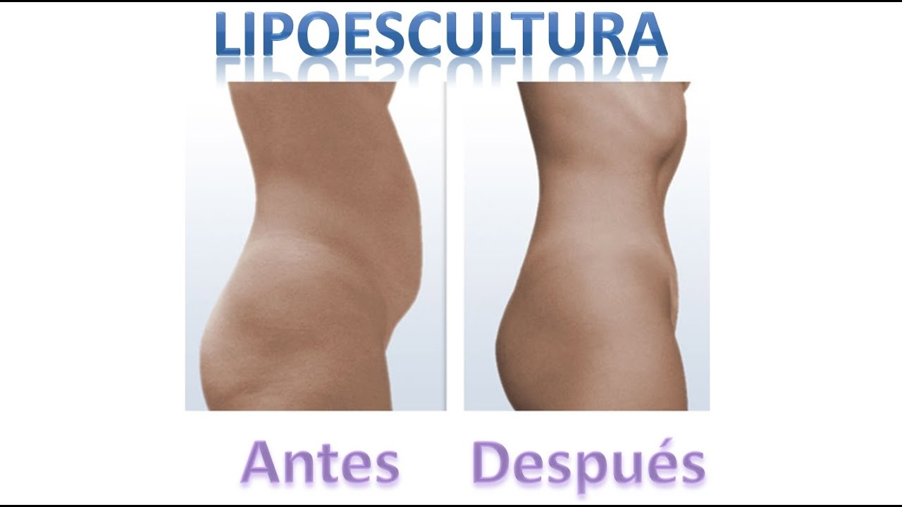 liposuccion body part y flancos postoperatorio