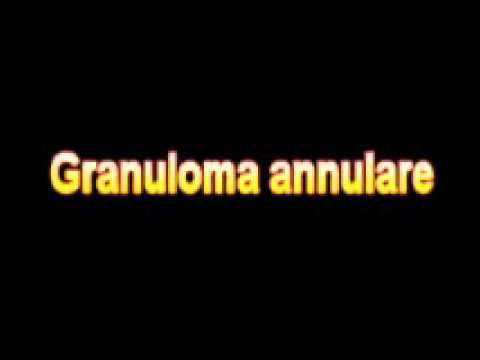 What Is The Definition Of Granuloma annulare - Medical Dictionary Free Online Terms
