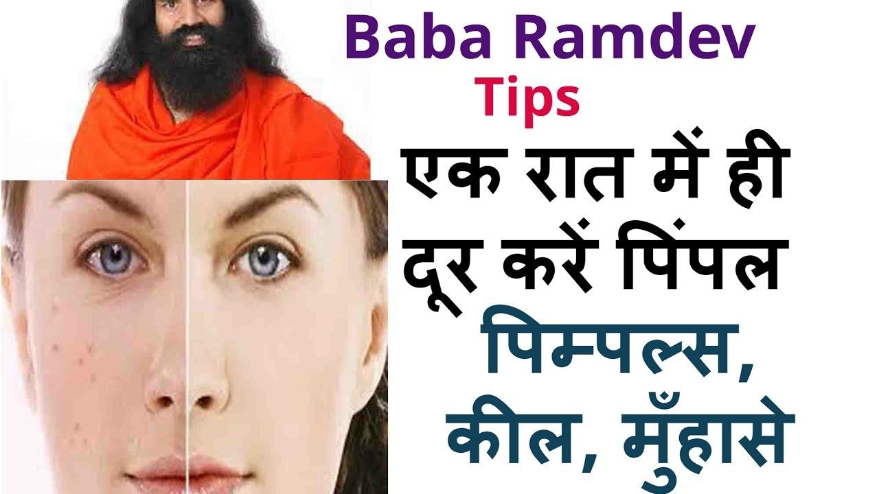 एक रात में ही दूर करें पिंपल Baba Ramdev