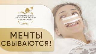 Ринопластика в клинике Хромова. 📖 Отзыв Анны, об операции ринопластики.  12+