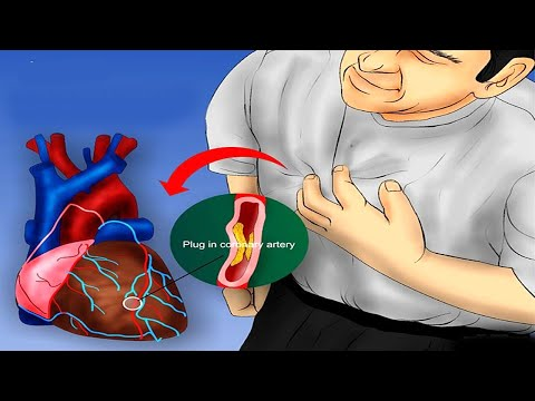1 Month Before Heart Attack! Important Body Signs You Shouldn't Ignore! Early Warning Signs Of Heart