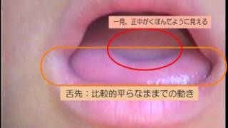 [ke]の側音化構音【その2】正しい音に聞き誤りやすい側音化構音 [ke] の構音動態