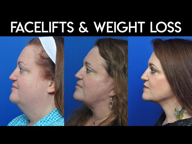 Facelifts and Weight Loss