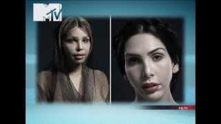 NewsБлок MTV: Жертвы пластических хирургов!