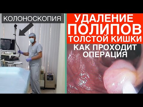 Удаление плоских полипов в толстой кишке (операция). Удаление полипов в кишечнике при колоноскопии.