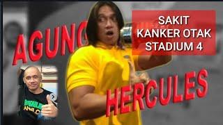 Hot News Agung Hercules Sakit Kanker Otak Stadium Empat