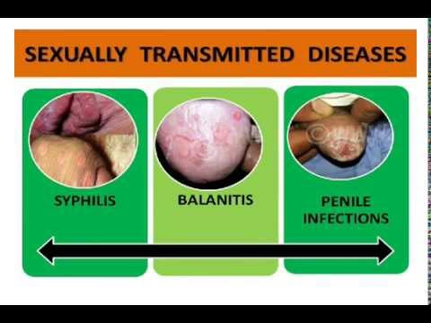 Penis Infections ,STD's, STI, Syphilis, Herpes, Gonorrhoea - Best ...