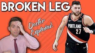 Jusuf Nurkic SCARY BROKEN LEG | Doctor Explains Injury