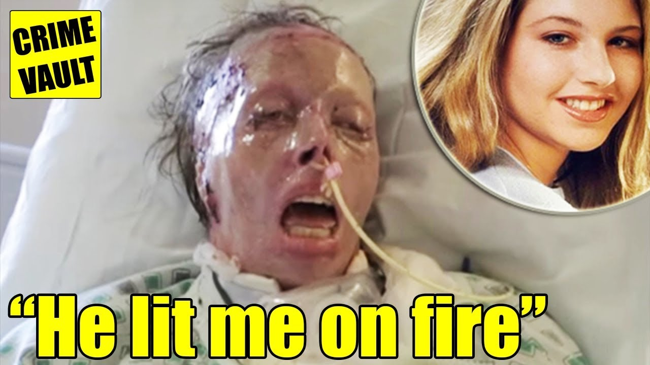 Woman's Testimony From Hospital Bed After Boyfriend Set Her On Fire