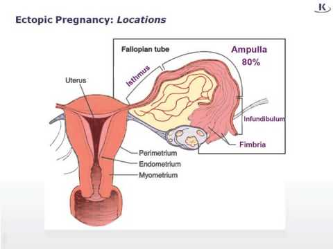 USMLE® Step 1 High Yield: Reproductive Medicine: Ectopic Pregnancy
