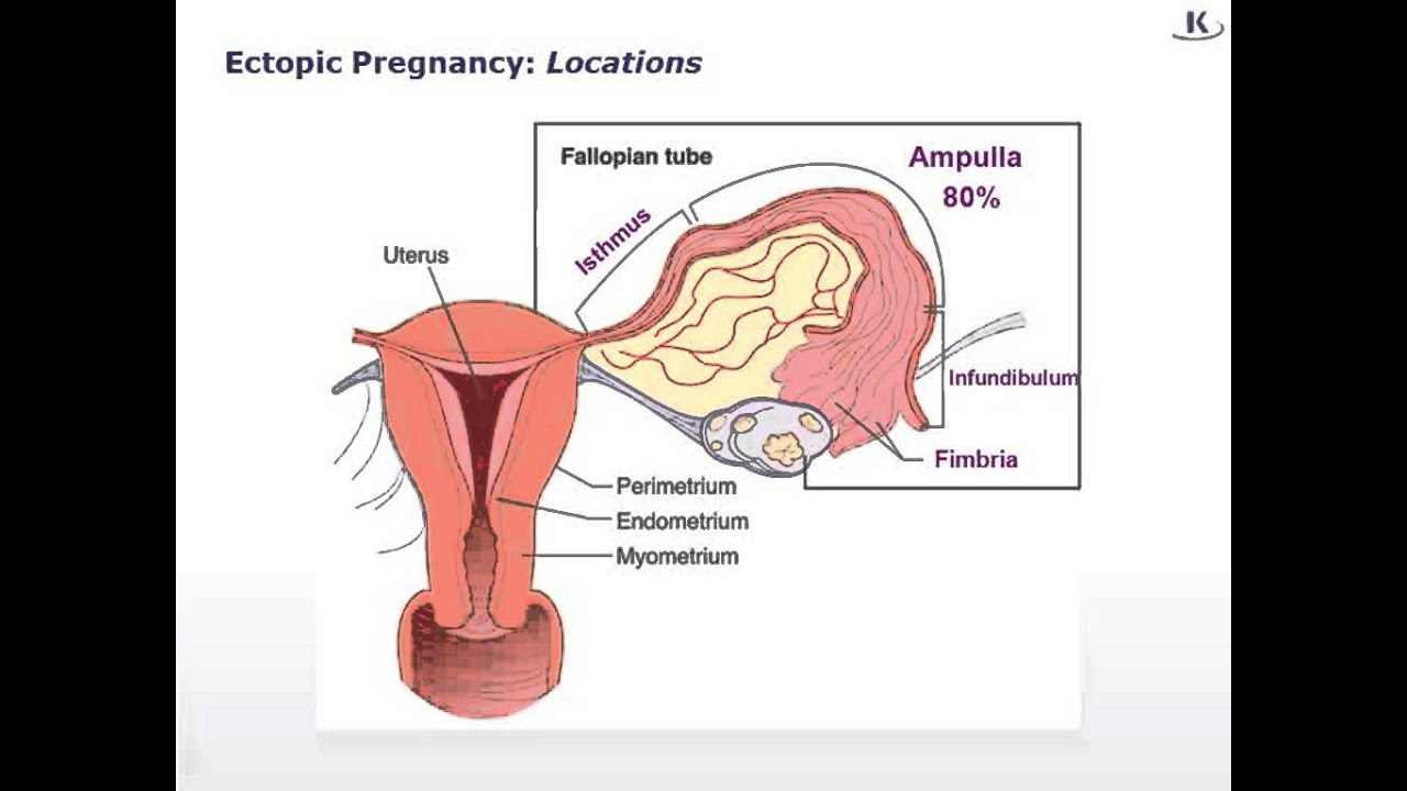 USMLE® Step 1 High Yield: Reproductive Medicine: Ectopic Pregnancy ...