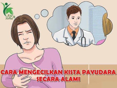 cara-mengecilkan-kista-payudara-secara-alami-tanpa-operasi