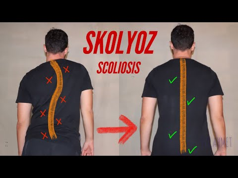 Skolyoz İçin 4 Egzersiz | 4 Scoliosis Exercises