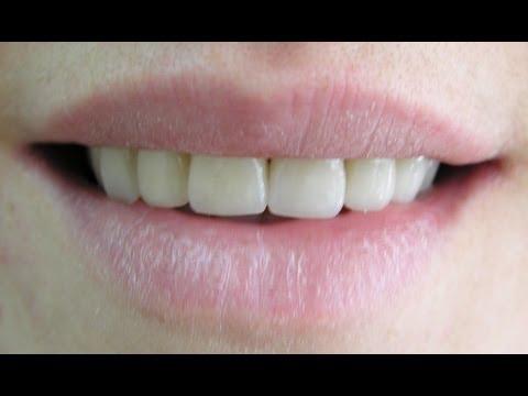 Wn Dental Anatomy Maxillary Central Incisor Carving
