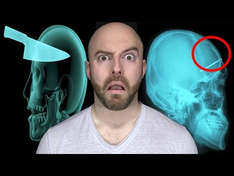 10 CRAZIEST Things Found Inside Living People!
