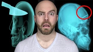 10 DISTURBING Things Found Inside Living People!
